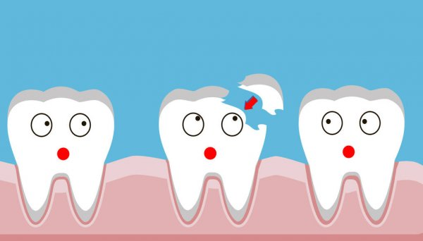 Common Tooth Injuries